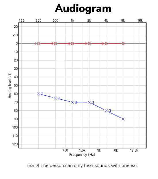Unilateral hearing loss audiogram